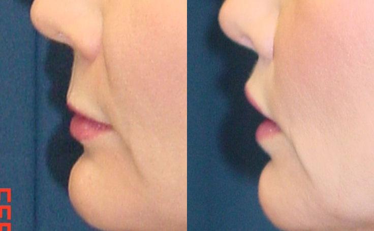 Lip Lift (side view)