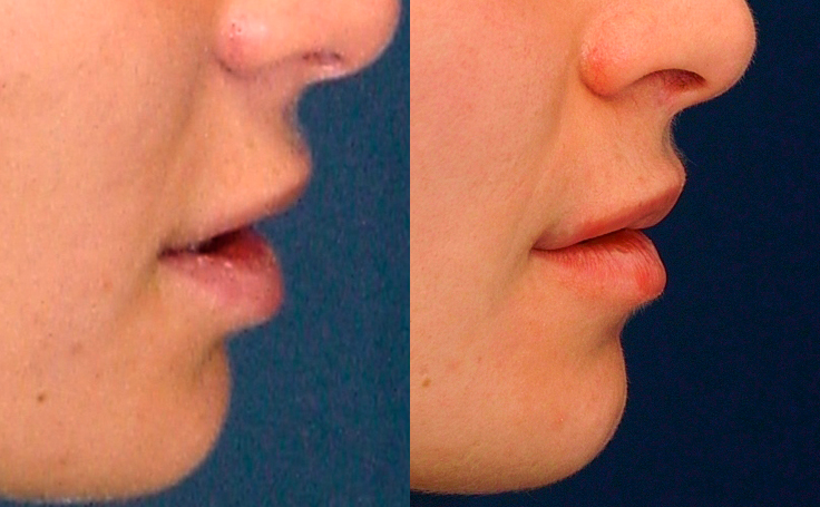 Lip Lift (side view)