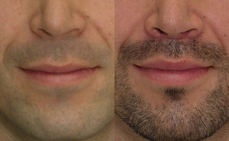 [Image: lip-lift-male-before-after-f-194.jpg]