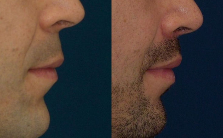 Male Lift Lip (side view)