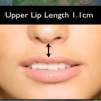 Upper lip length 1.1 cm.