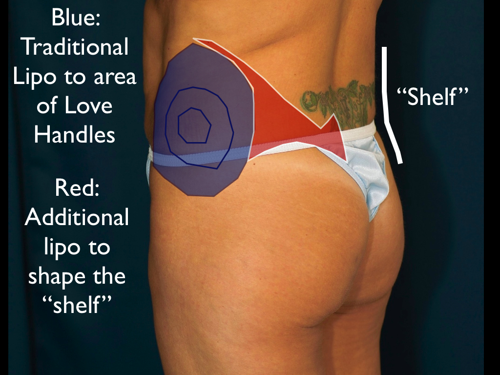 "Extended area of lipo improves the ""shelf"", or transition area between lower back and buttock"