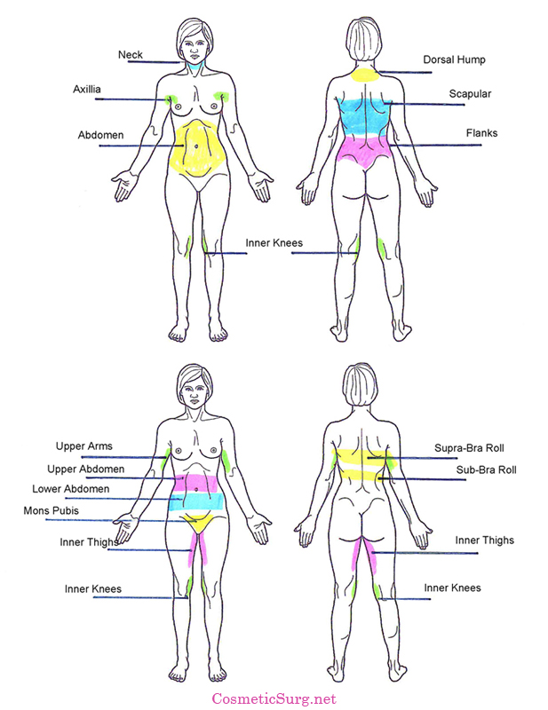 diagram of the female body detailing common liposuction areas