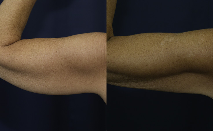 Liposuction to Arms (back view)