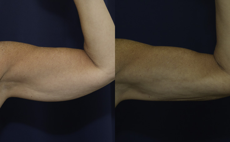 Liposuction to Arms (front view)