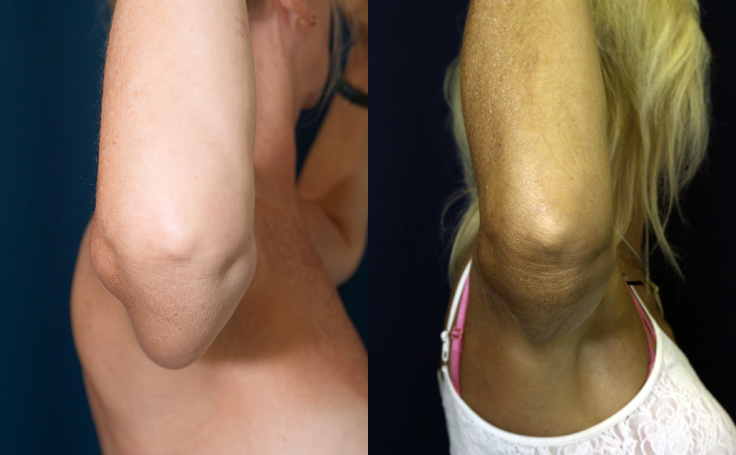 Liposuction to Arms (side view)