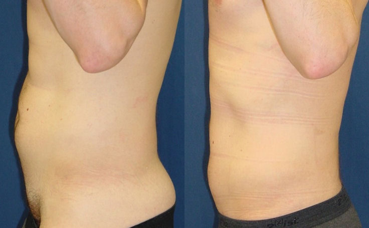 Male Liposuction of Love Handles (side view)