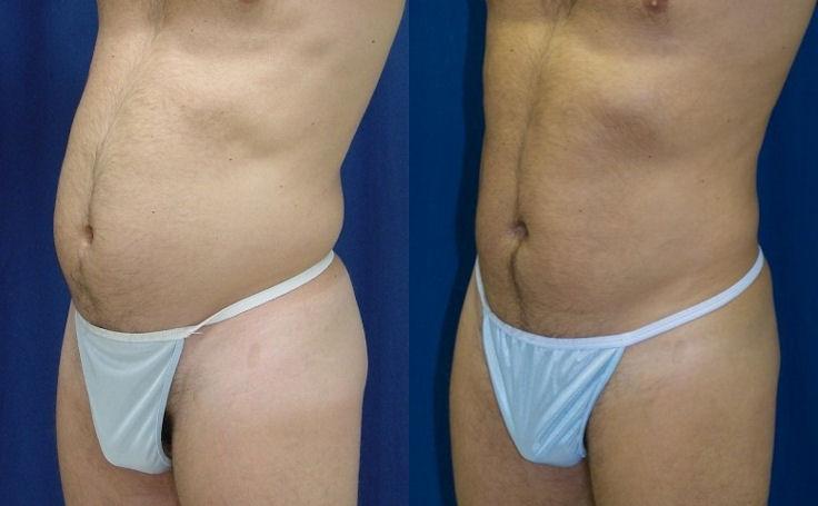Male Abdomen Liposuction (angle view)