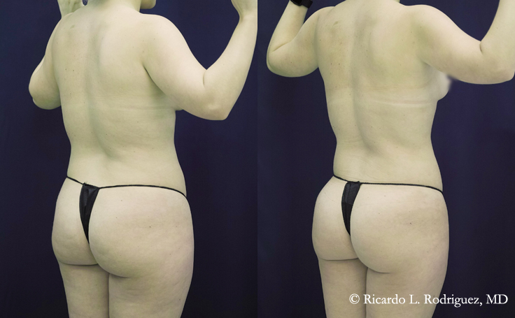 Liposuction with 4000 cc Removed (back view)