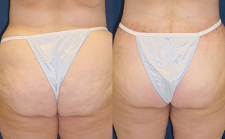 Lipo to Buttocks and Flanks (back view)