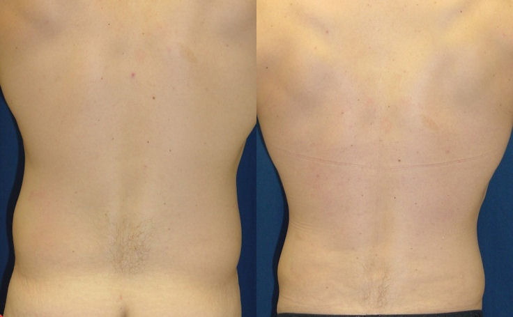Before and after photo of an actual Liposuction patient.