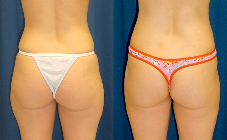 Liposuction to Triangle above Buttocks (back view)