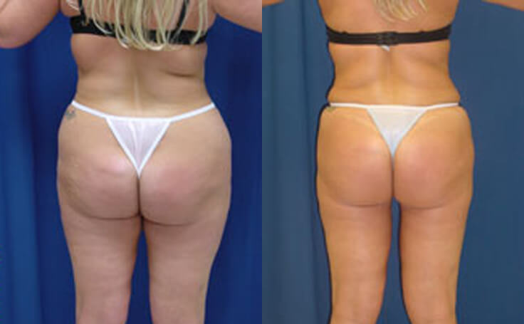 Liposuction to Flanks (back view)