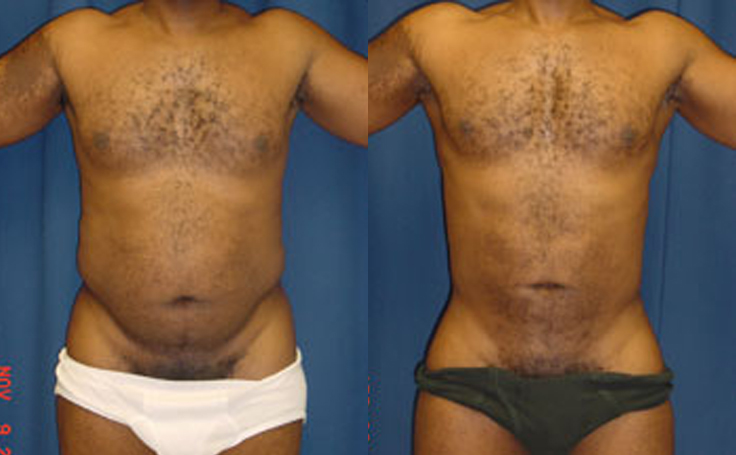 Abdomen Liposuction (front view)