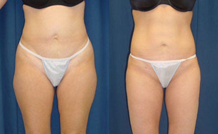 Liposuction to Abdomen and Thigh (front view)