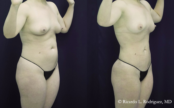 Liposuction with 4000 cc Removed (angle view)