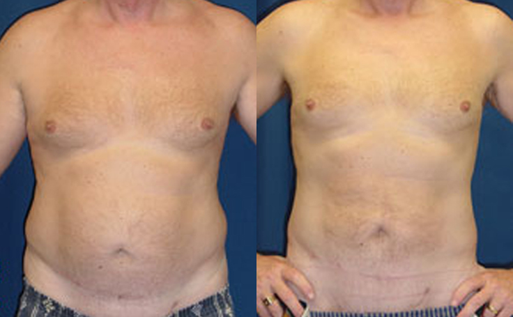 Male Liposuction to Abdomen (front view)