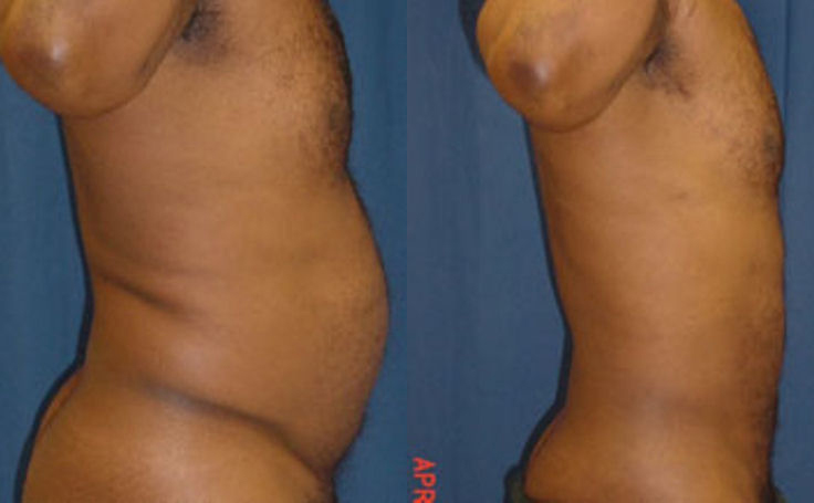Abdomen Liposuction (side view)