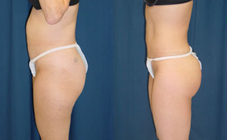 Liposuction to Abdomen and Thigh (side view)
