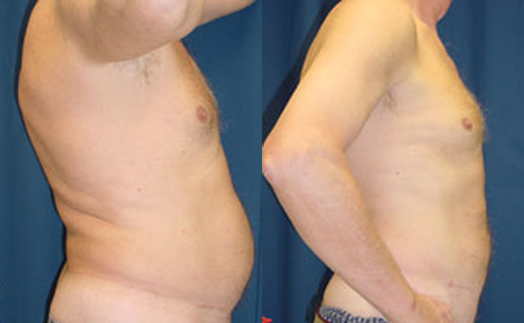 Male Liposuction to Abdomen (side view)
