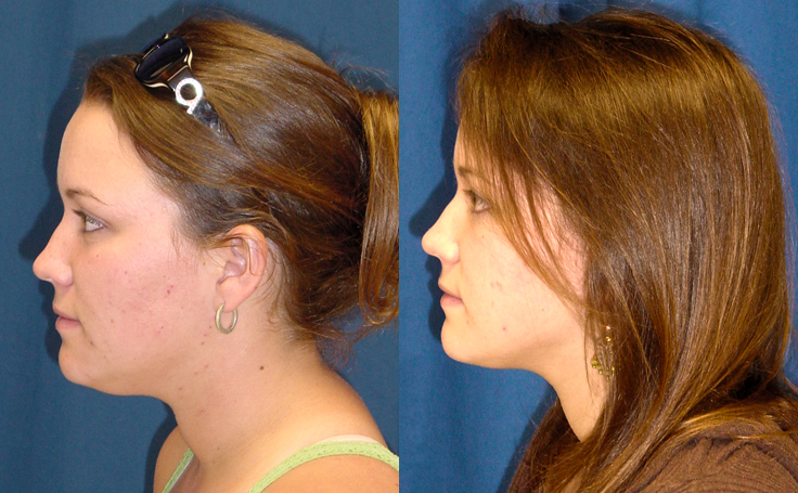 Liposuction to Face (side view)