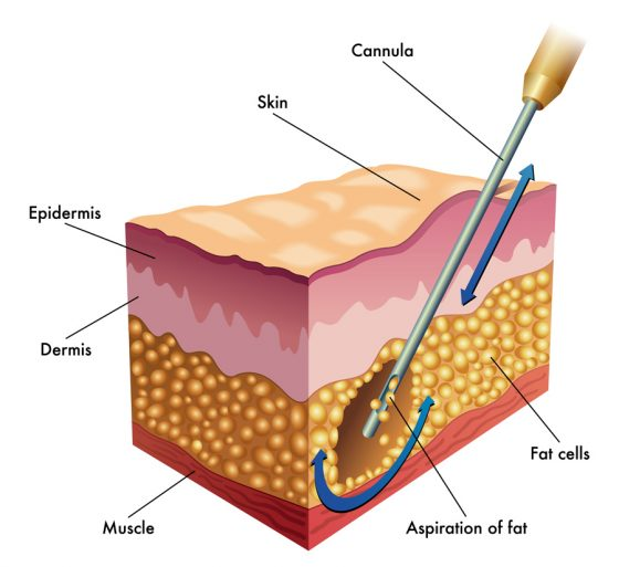 diagram of liposuction using a cannula with a larger hole at the tip