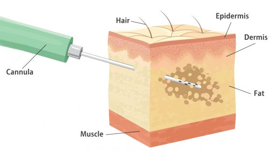 liposuction diagram using small diameter cannula with small holes