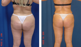 A collage of photos of a patient before and after a Liposuction.