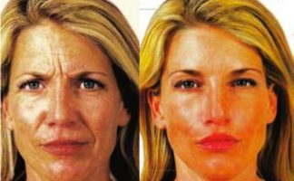 Before and after photo of an actual Facial Fillers patient.
