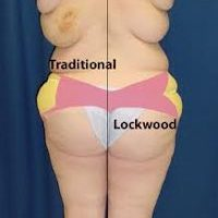 A collage of photos of a patient before & after a Body lift with the Lockwood technique.