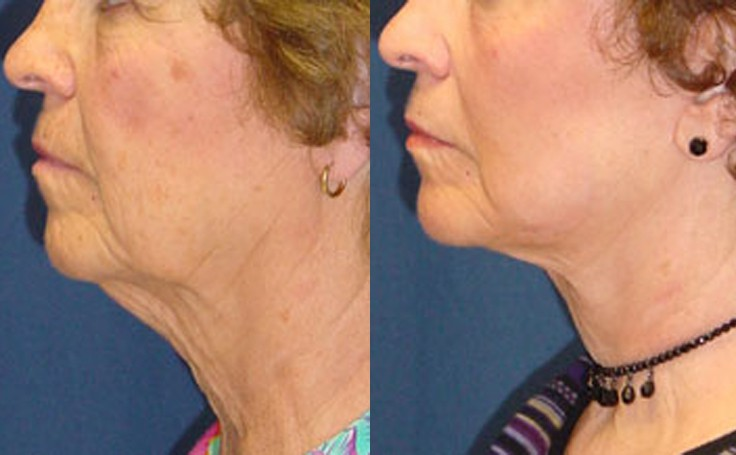 Lower Facelift with Dr. Rodriguez