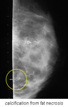X-ray: Calcification from fat necrosis.