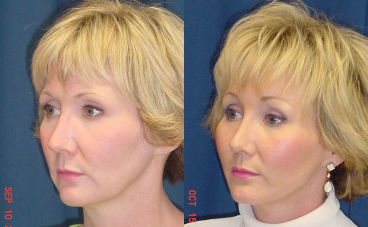 Mid Facelift with Brow Lift Before and After