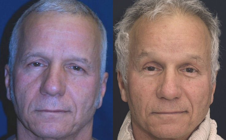Male Mid Facelift with Dr. Rodriguez in Baltimore
