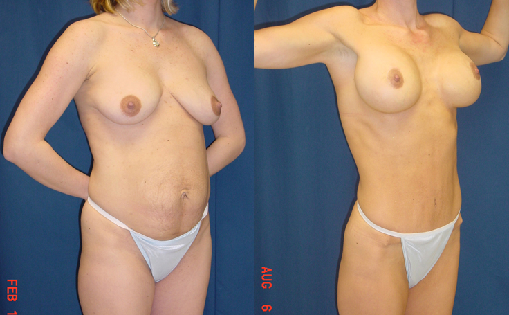 Tummy Tuck and Breast Lift with Implants (angle view)