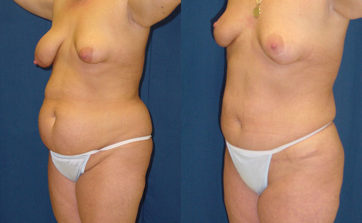 Tummy Tuck with Bilateral Breast Lift (angle view)