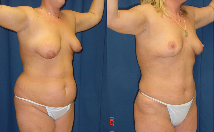 Tummy Tuck with Bilateral Breast Lift (additional angle view)