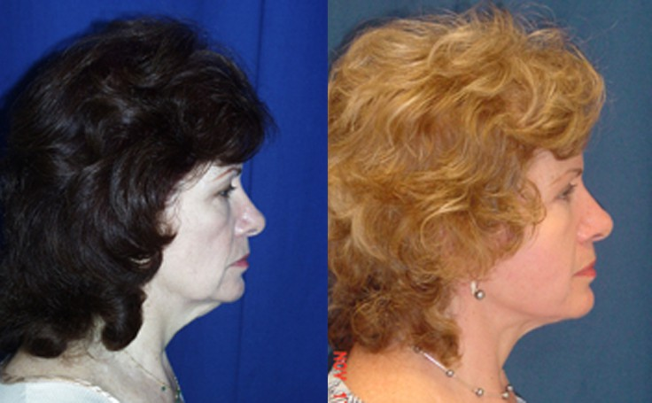 Neck Lift on female in her 50's