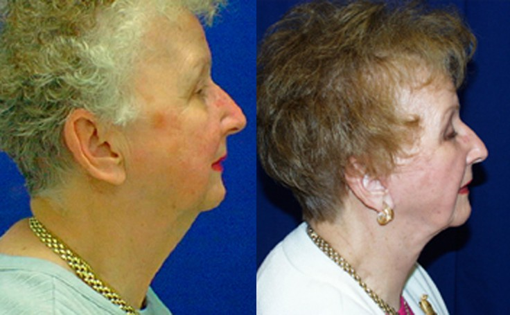 Neck Lift Before and After with Dr. Rodriguez in Baltimore