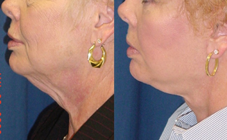 Before and after photo of an actual Neck Lift patient.