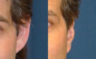 Before and after photo of an actual Otoplasty patient.