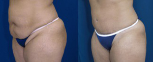 Patient before and after tummy tuck with scar below the panty line