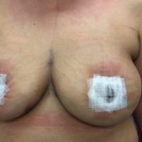 breast lift patient 2 days after surgery