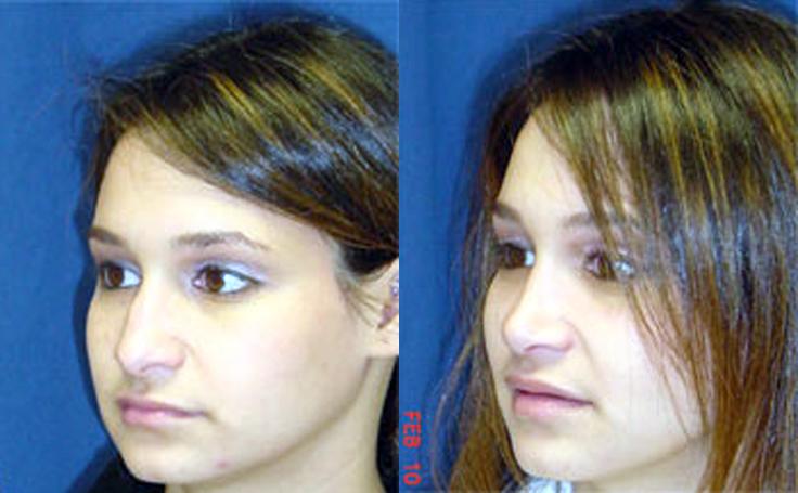 Rhinoplasty to define slope of nose, alternate view