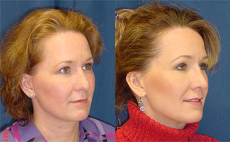 Rhinoplasty to reduce nose size alternate view