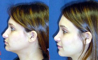 Before and after photo of an actual Rhinoplasty patient.