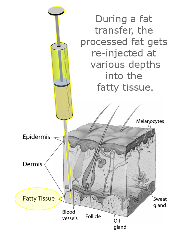 skin-layers-fat-transfer-cannula