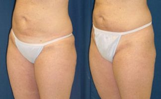 Before and after photo of an actual Thigh Lift patient.