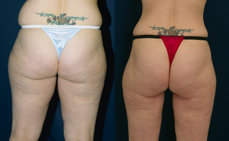 Thigh Lift to Tighten Loose Skin (back view)