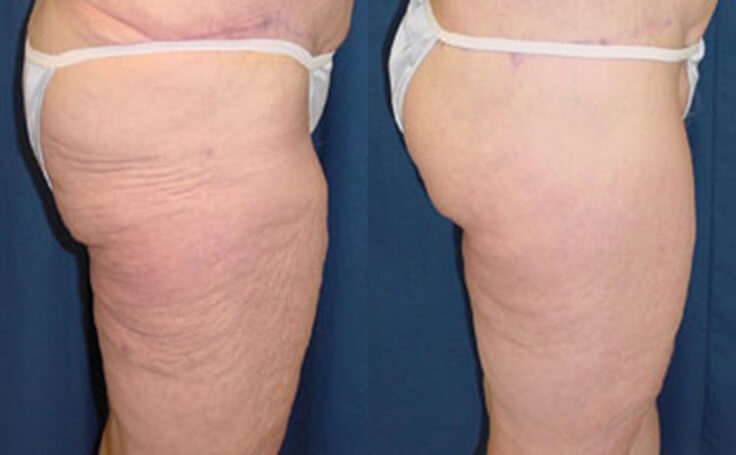 Inner & Outer Thigh Lift (side view)